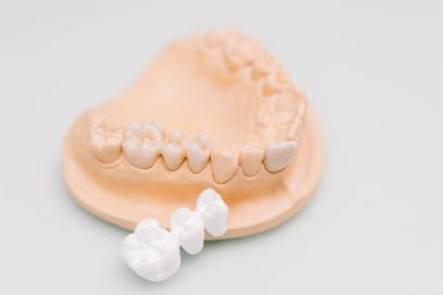 Zahnarzt Seeshaupt, Penzberg, Weilheim, Tutzing - Praxis Radu Firoiu - Ästhetische Zahnheilkunde - Vollkeramischer Zahnersatz